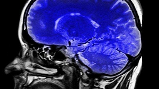 Estilo de vida sedentário causa alterações no cérebro 1