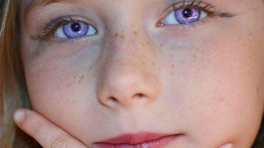 """Síndrome de Alexandria: a """"condição rara"""" dos olhos violeta 1"""