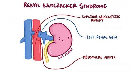 Síndrome de quebra-nozes: sintomas, causas e tratamento 1