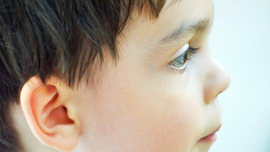 Síndrome de Rubinstein-Taybi: causas, sintomas e tratamento 1