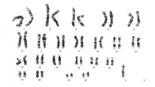 Síndrome de Turner: sintomas, tipos, causas e tratamento 1