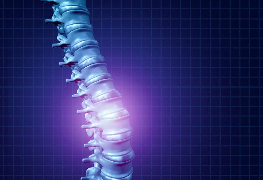 Síndromes medulares: tipos, causas e sintomas