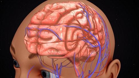 Rachaduras cerebrais e suas características 3