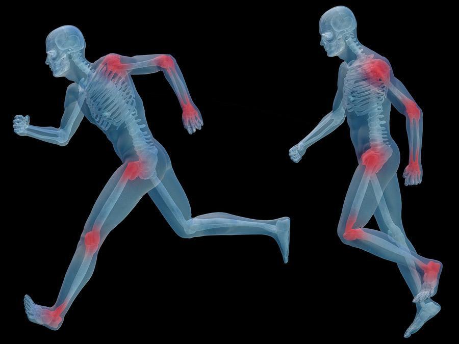 Sistema osteoartroso muscular (SOAM): divisão e funções 1