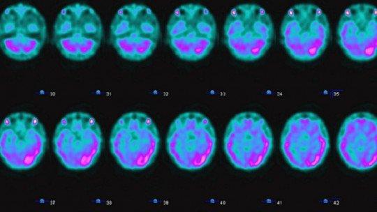 Brain Spect: o que é esse método de neuroimagem e como funciona? 1