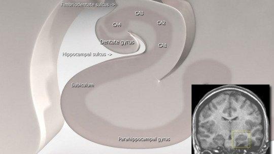 Subículo: partes e funções dessa estrutura cerebral 1