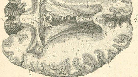 Substância branca do cérebro: estrutura e funções 1