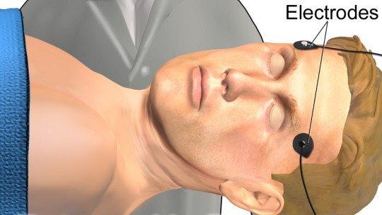 Terapia eletroconvulsiva (ECT): características e usos em psiquiatria 1