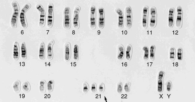 Como a síndrome de Down é gerada no ciclo celular? 1