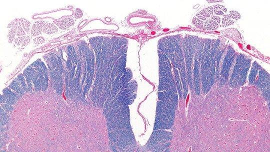 Os 2 tipos de mielite: sintomas, causas e tratamento 1