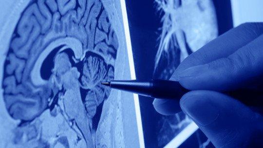 Os 8 tipos de neurologistas (e quais patologias neurológicas eles tratam) 1