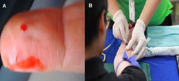 Esfregaço de sangue: características, tipos, técnicas e histologia 2