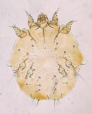 Sarcoptes scabiei: características, morfologia, transmissão, sintomas